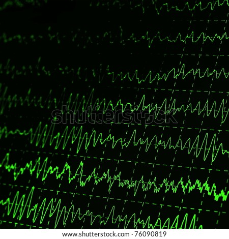 green graph brain wave EEG - stock photo