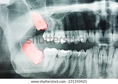 Growing Wisdom Teeth Pain On X-Ray - stock photo