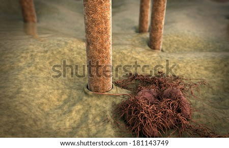 hair, fungus, Skin under microscope, image of skin with hair, Camera flies over the surface of the skin, 3d illustration of hair, fungus killing the hair  - stock photo