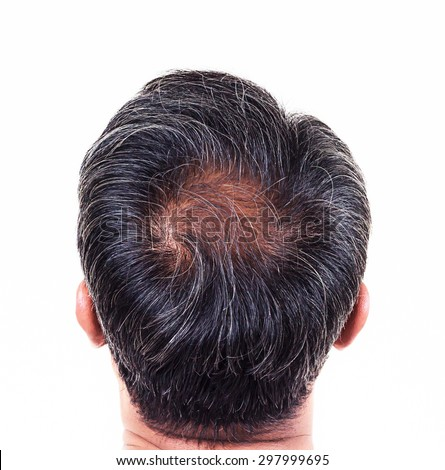 hair loss and grey hair, Male head with hair loss symptoms back side. - stock photo