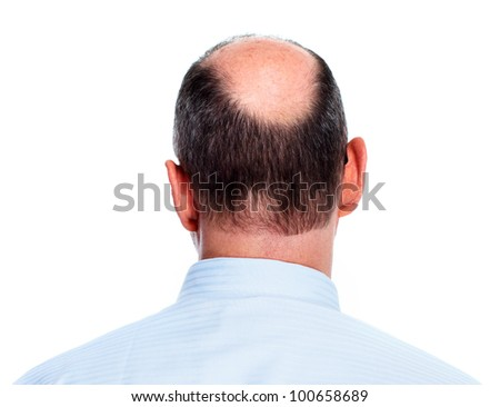 Hair loss. Bald man. Isolated on white background. - stock photo