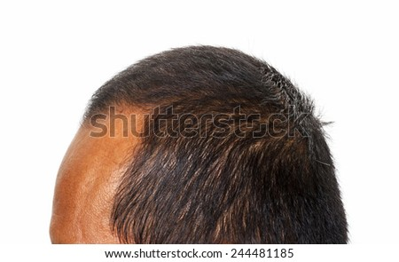 Hair loss , Male head with hair loss , isolated on white background. - stock photo