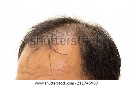 hair loss, Male head with hair loss symptoms front side. - stock photo