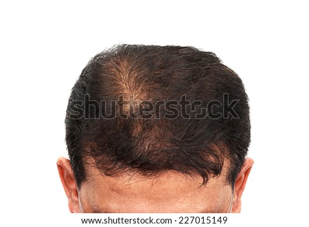 hair loss, Male head with hair loss symptoms front side - stock photo
