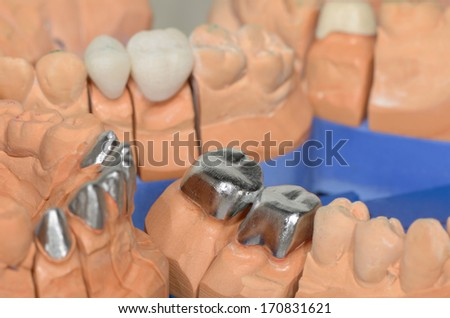 half finished dental crowns, metal caps on plaster cast - stock photo