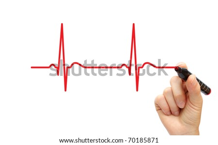 Hand drawing ECG - stock photo