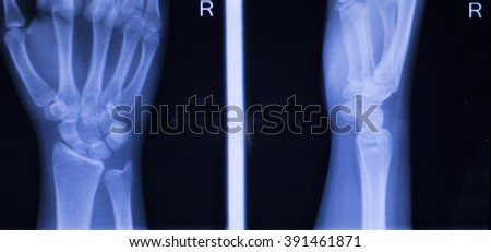 Hand, fingers, thumb and wrist injury orthopedic Traumatology medical x-ray test scan image. - stock photo