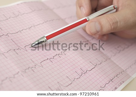 hand holding pen indicates  beats in ECG - stock photo
