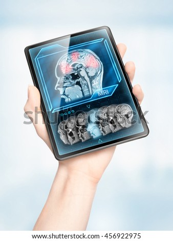 Hand holding tablet displaying cerebral activity