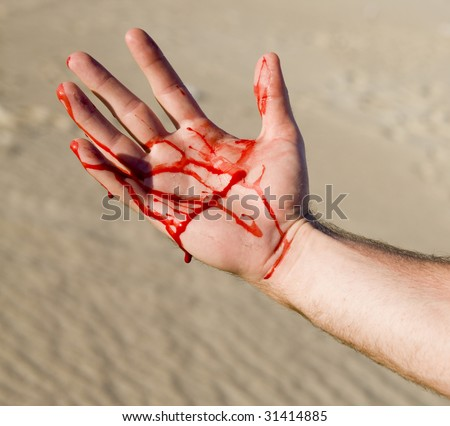 Hand Injury - stock photo