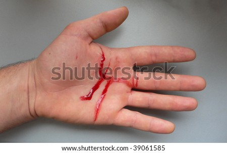 hand injury with blood isolated