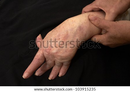 Hand of an elderly woman by arthritis, rheumatism, osteoarthritis shot on black