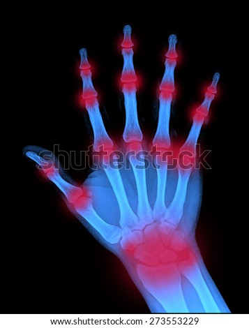 hand on black background, x-ray - stock photo
