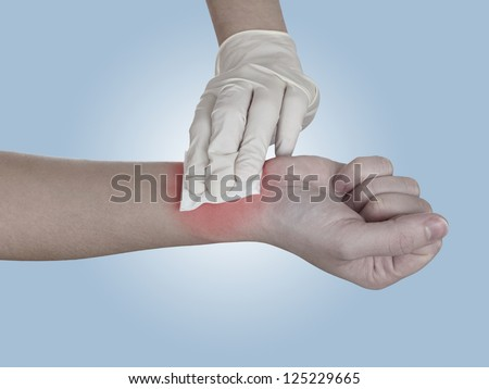 Hand pressing gauze on arm after administering an injection. Healthcare And Medicine Concept photo. Colour enhanced skin to emphasize problematic part. - stock photo