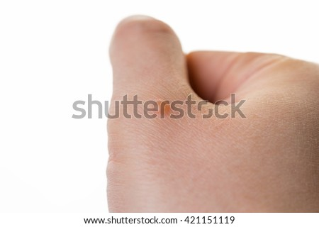 hand with wart isolated on white background