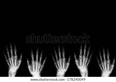 Hand X-ray background - stock photo