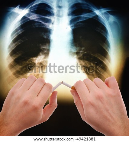 Hands breaking a cigarette in front of the x ray image of human abdomen - stock photo