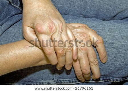 Hands of a woman with rheumatism