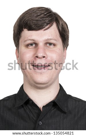 Handsome American or European young man with braces and acne - stock photo