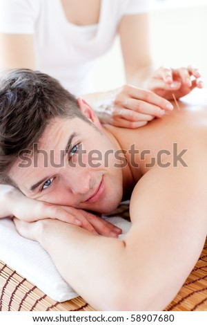 Handsome young man in an acupuncture therapy - stock photo