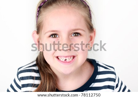 Happy girl with her first missing tooth - stock photo