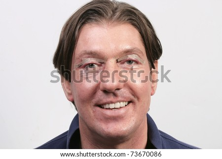 Happy man one day after eyelid surgery - stock photo