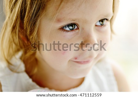 happy portrait of toddler girl with chicken pox