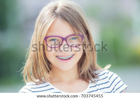 Excellent idea Cute teens with braces glasses final, sorry