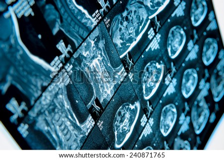 Head and neck MRI scan, anonymized, shallow focus - stock photo