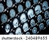Head and neck MRI scan, patient's and clinic's info removed, shallow focus depth - stock photo
