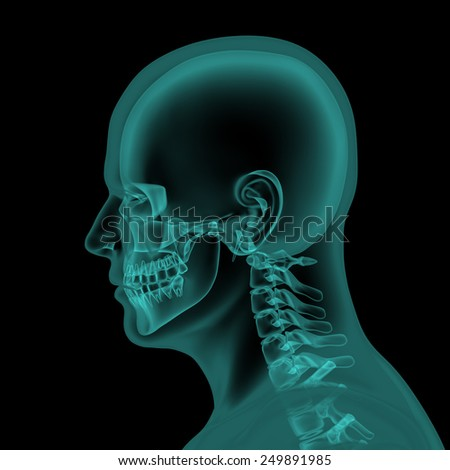 Head and neck x-ray scan render - stock photo