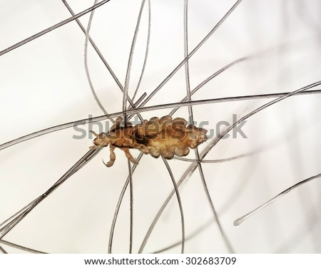 Head lice (louse) on human hair - stock photo
