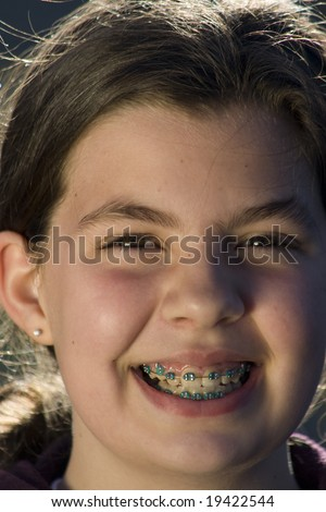 Head shot of girl smiling while wearing braces - stock photo