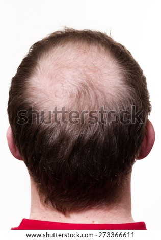 Head with less hair - stock photo