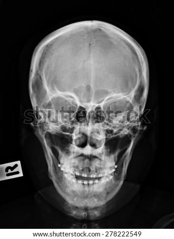 Skull Xray Stock Images, Royalty-Free Images & Vectors ... X Ray Views Of Skull