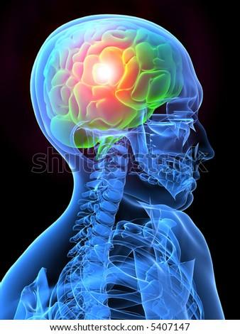 headache - stock photo