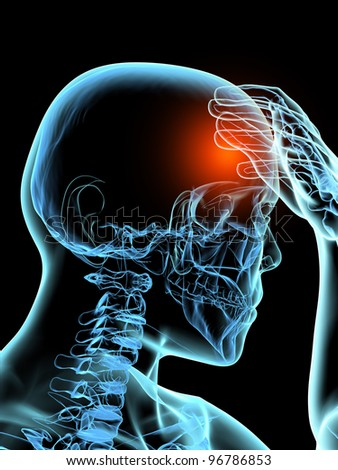 Headache 3D Xray Model - stock photo