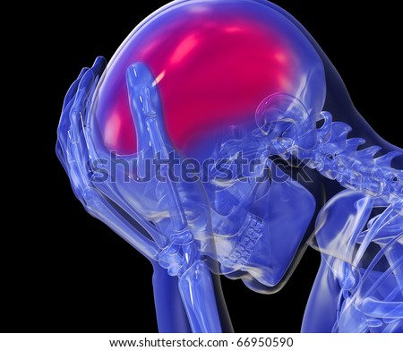 Headache, Pain - stock photo