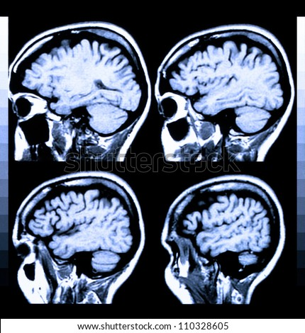 Health medical image of an MRI / MRA (Magnetic Resonance Angiogram)  of the head showing the brain - stock photo