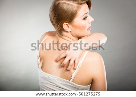 Health problem, skin diseases. Young woman scratching her itchy back with allergy rash