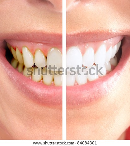 Healthy beautiful smile. Dental health. Whitening. - stock photo