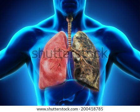 Healthy Lung and Smokers Lung - stock photo