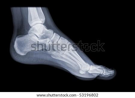 healthy running foot - stock photo