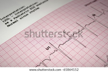 Heart analysis, ECG graph, pediatric electrocardiogram. - stock photo