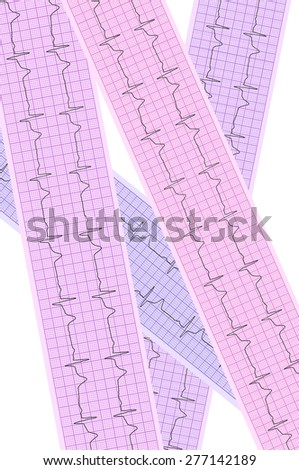 Heart analysis, electrocardiogram graph (ECG) - stock photo