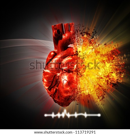 heart attack. abstract medical and health care backgrounds - stock photo