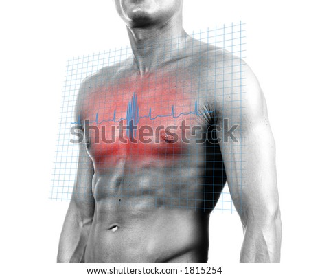 Heart Attack - isolated digital composition - stock photo