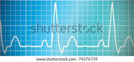 Heart beat monitor - electro cardio graph - on blue / green background