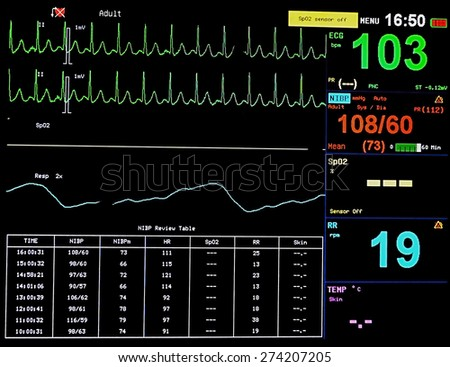 Heart blood pressure monitor used in a hospital room - stock photo