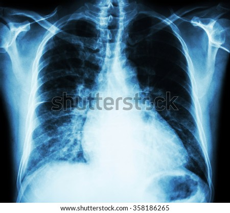 Heart failure  ( film x-ray chest PA upright : show cardiomegaly and interstitial infiltrate both lung ) - stock photo